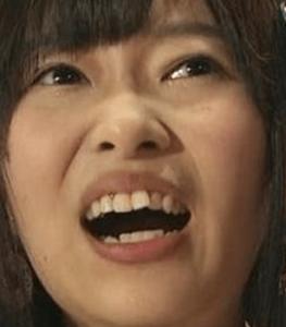 指原莉乃 かわいい 最近 目 鼻 変わった 歯 矯正