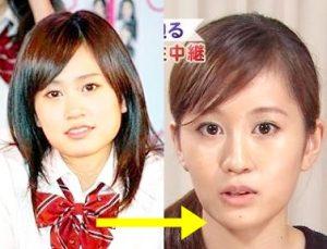 前田敦子 顔 変わりすぎ エラ 削った 本人 認めた