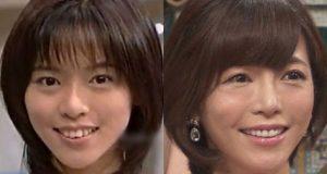 釈由美子 顔 変わった 顔面崩壊 ボコボコ 旦那 画像