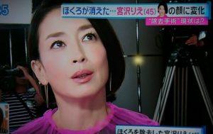ホクロ 切除 森田剛 妊活 トレードマーク 宮沢りえ